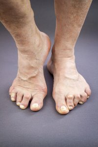 Bunions Sugar Land by Advanced Foot and Ankle Specialists